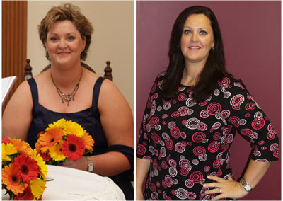 Kelly's Gastric Sleeve