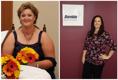 Patient before and after Bariatric Surgery