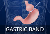 Darebin-weight-loss-surgery-gastric-band