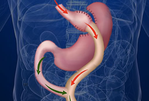 Bariatric Surgery Gastric bypass