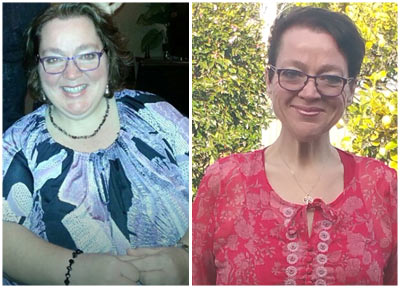 Jen's Gastric Sleeve Surgery has happy results