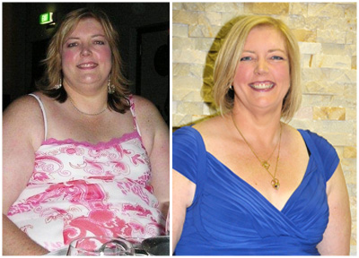 Jenny gastric sleeve before and after photo