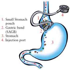 adjustable-gastric-banding-image