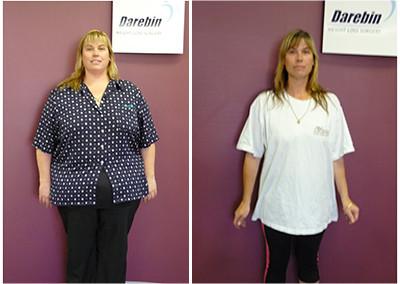 Weight Loss Surgery Success: Before & After - Darebin ...