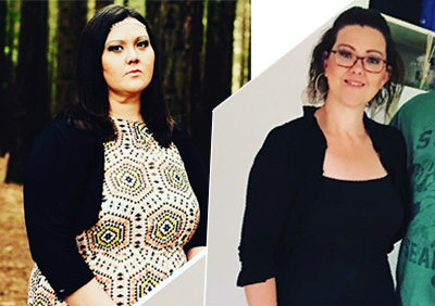Weight Loss Surgery Success Before After Darebin Weight Loss